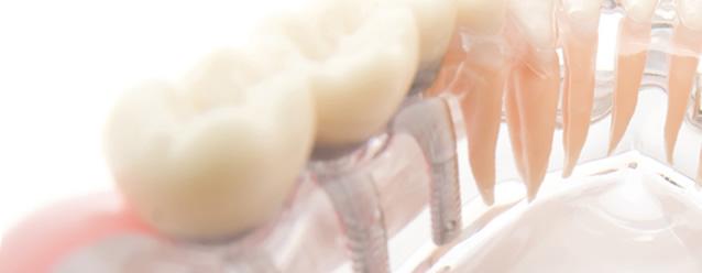 遠藤歯科医院のインプラント治療