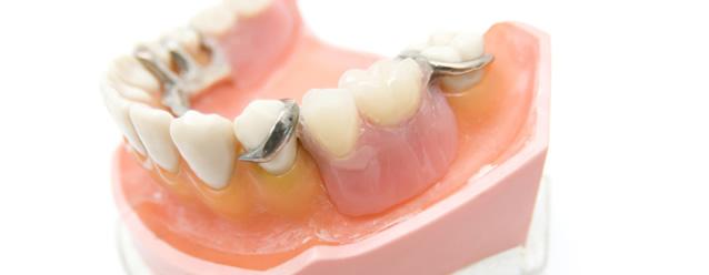 入れ歯の特徴について